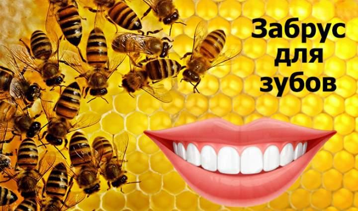 Лечат зубы забрусом