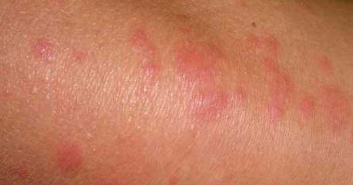 Аллергия от цикория